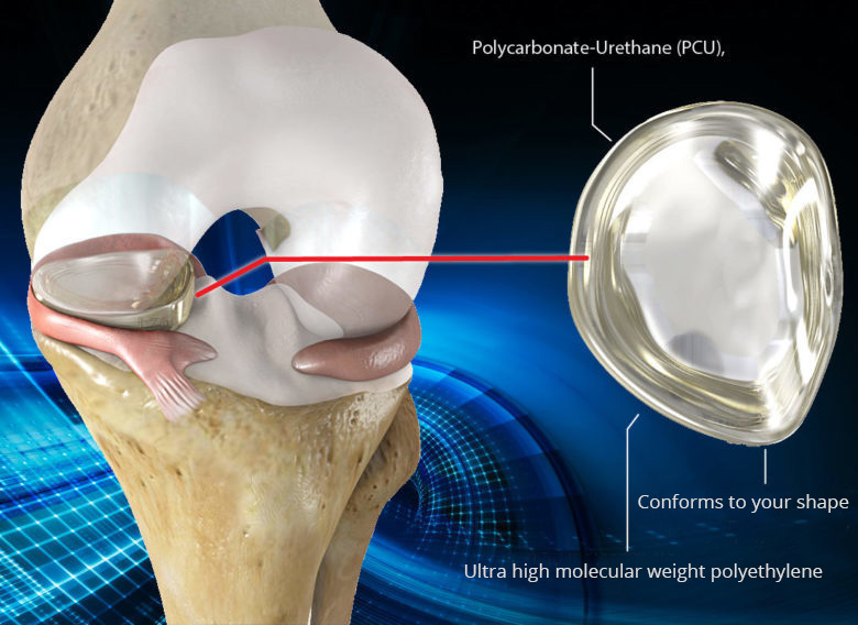 NUsurface® Implant for knee pain