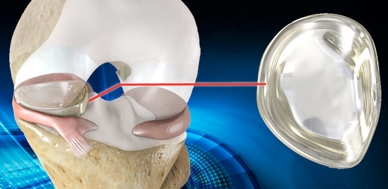 NUsurface® Meniscus Implant for knee and joint pain